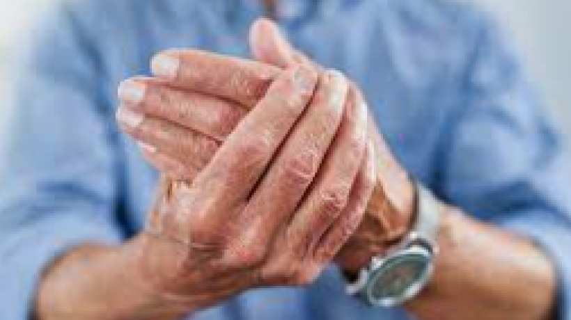 How Arthritis can affect your mobility